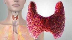 обследование щитовидной железы в Гатчине